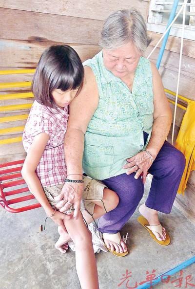 婆婆郑素梅(右)针对孙女林佳慧(左)的下边多处为狗咬伤,留伤痕感到很心疼。