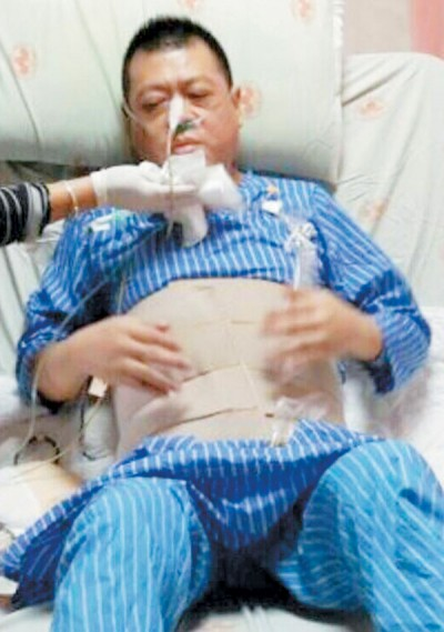 孙德荣自爆摘除下体,为止痛吸毒。