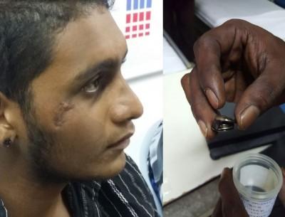 巴温德仁几经折腾,藏在脸部伤口内的生锈头盔挡风镜锁钮终被取出。