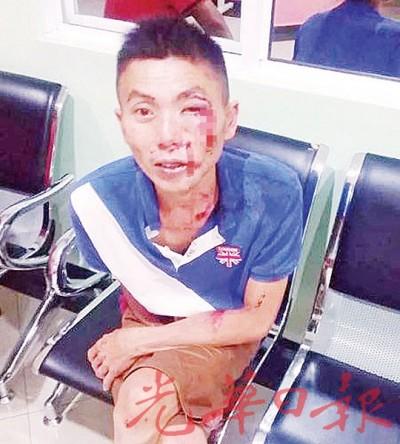 江泽明在住家附近发现可疑人物欲跟踪查看,却遭匪徒踢下摩托受伤。
