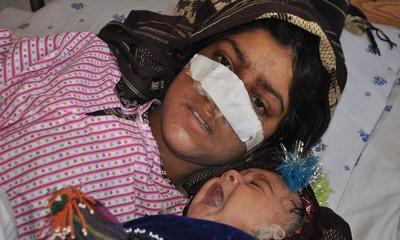雷扎深受丈夫割鼻,毁容照片在网上广传后激动全国。