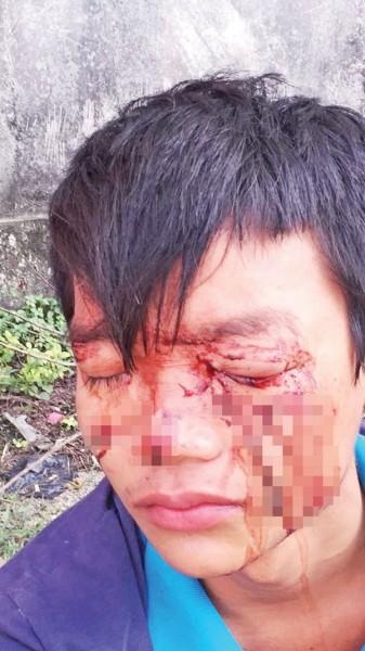 吕俊伟被恶霸挥拳殴打,其左眼严重重伤,恐怕失明。
