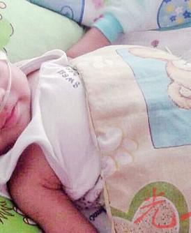 两个月大男婴黄永胜心脏有孔及心血管异常,医生建议年初四或五进行手术。