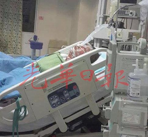 被火烧伤的女子在加护病房治疗中。