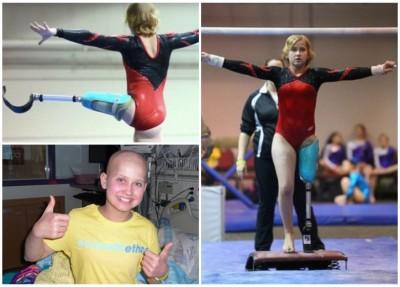 凯特性格乐天,很多人受到其坚毅不屈精神感染。凯特成为团中唯一一名装义肢比赛运动员。凯特如常人般表演自如。
