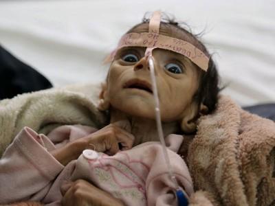 乌代出世时正值其村遭空袭,粮食极度短缺,惨遭活活饿死。