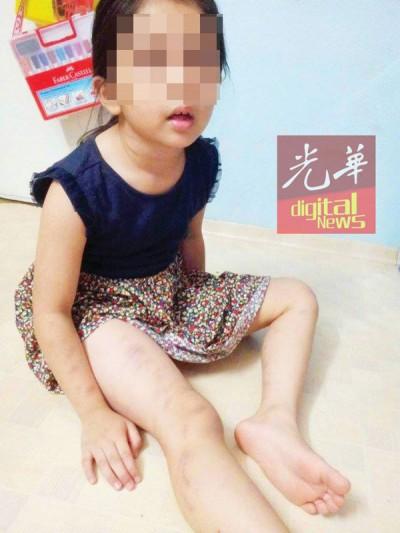 女童的手掌和腿部都被鞭至瘀伤。