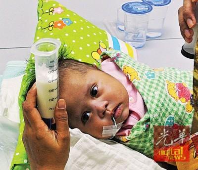 唐氏症女婴心脏有孔,无法吸吮,奶水通过管子流入喉管。