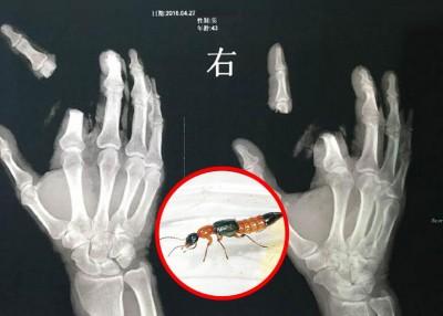 男子的食指沾上隐翅虫毒液后,觉得很痒,竟然挥刀斩掉手指。\=