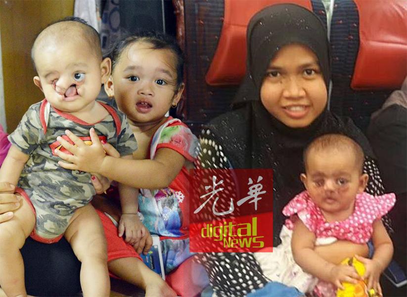 女婴手术前的情况(左)。在母亲怀抱里的女婴,脸部恢复正常。