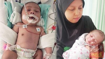 (左)男婴甫出娘胎,靠着呼吸辅助器生存。(右)母亲诺茜达幼感谢善心人士的捐助,她终于能把男婴搂在怀里。