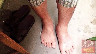 蔡伯伯指他几日前被李婆婆用家具砸伤脚。
