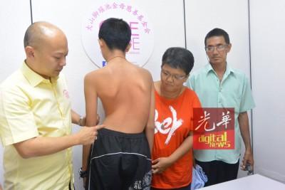 脊椎弯曲68度,且逐渐硬化,父母亲希望儿子尽快动手术摆脱煎熬,左为蔡瑞豪。