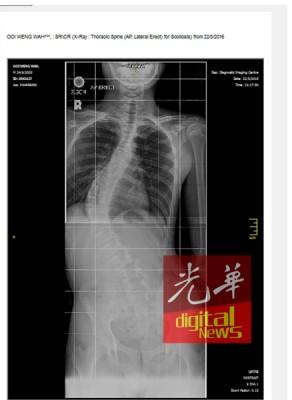 黄荣华脊椎的X光片,目前已呈68度S形弯曲。