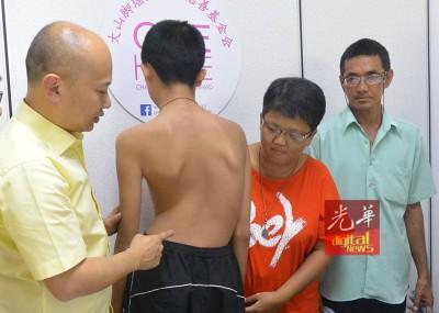 黄荣华脊椎弯曲程度严重,必须尽快进行手术矫正,左为蔡瑞豪,右起为父亲黄文思及母亲胡美薇。