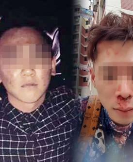 落网嫌犯是18岁青年蒋姓青年(左)。被打伤男子杨子逸。