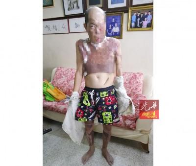 陈国泰上半身及脸部因吃大火吞噬,30%面积为烧伤。