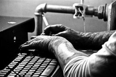 """烧伤后""""大象""""的双手已变形及满是黑色的疤。"""