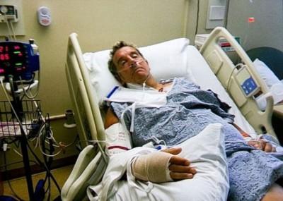 考克斯就下跌到脑部永久受损。