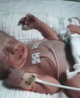 安娜为感谢医院照顾的一个善举,帮助了后来早产出生的汉布利。
