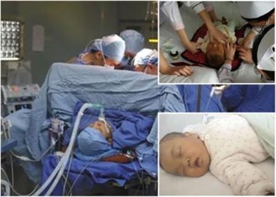 怀念韵肝脏移植手术顺利完成,动静稳定。