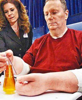 凯普纳接受双手移植后,复元状况不佳。