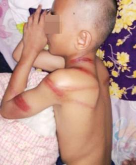 其中一名被鞭打的学生,头部及身体都有伤痕。