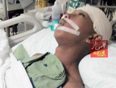 阿纳斯已完成脑部手术,但还是处于昏迷状态,未度过危险期。