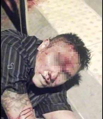 嫌犯与居民挣扎时弄伤了脸部和手腕。