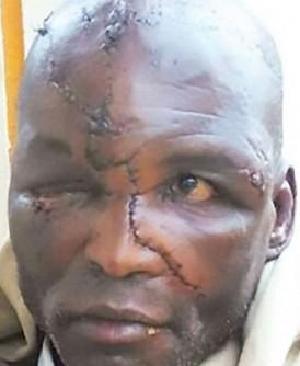 阿德韦柏奇头部严重受伤。