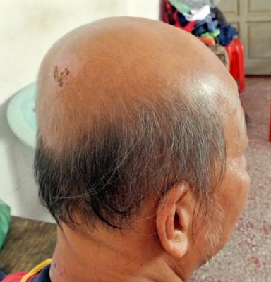 阿福敷药之后,头部的伤口已慢慢痊愈。