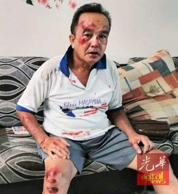 吴姓商贩从摩托车跌下受伤。