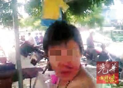 华裔男子脱掉上衣来擦拭满脸鲜血。