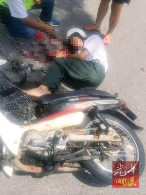 中学生骑士遭后镜玻璃割伤脸部,血流满面。