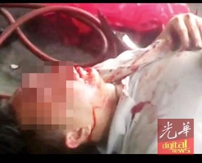 华青被殴满脸鲜血倒卧路旁一店前。