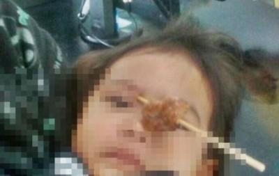 女童的眸子最终连不曾好伤。