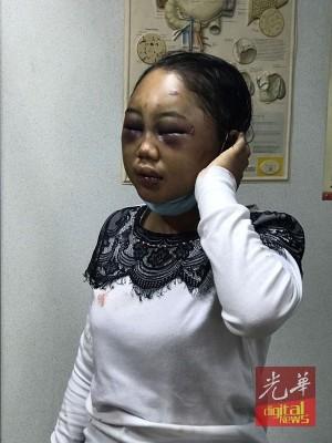 公安部不败女佣脸部的伤疤是饱受人暴打所致。