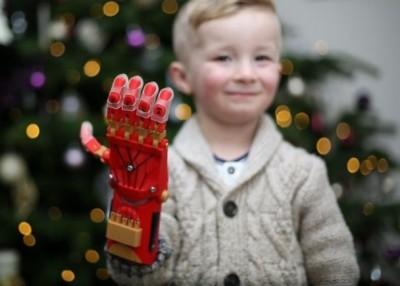 伯伦奈-克罗伊登对义肢爱不释手。(互联网图片)