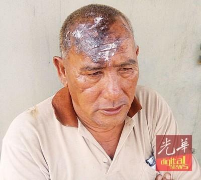 头部被灼伤的巫裔工友莫哈末阿里夫。