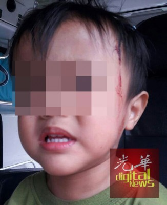 死者受伤的小孩,一度让送往国大医院接受治疗。
