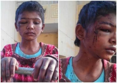 让虐打女童满面伤痕的相片在社交媒体疯传。