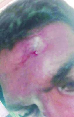 印裔保安人员脸部、头部被打伤。