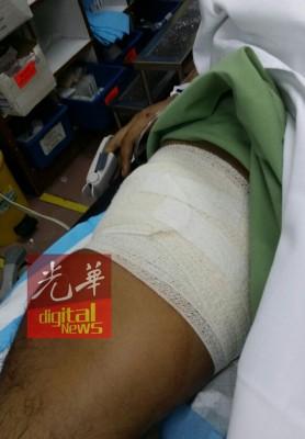 警员古赛里右腿部被嫌犯以利刀刺伤。