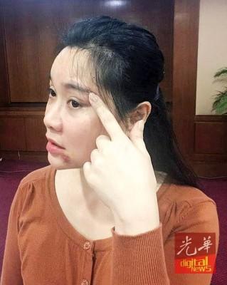 吴少梅指出眉头上遭痛殴后留下的伤疤。