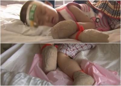 哈尔滨2岁女童仅穿单薄的衣服外出寻母,结果双耳、双手及双脚冻伤,右手5指或须截指。