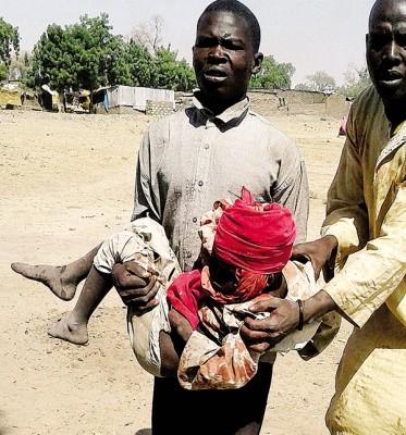 一名男童被炸伤。(法新社照片)
