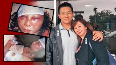 童仲彦被指对妻子李秀环家暴力。