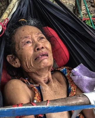 婆婆去年遭蛇咬,导致手脚肌肉萎缩,完全无法动弹,生活也不能自理。