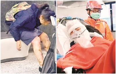 芷楠手脚严重烧伤,送院时需用氧气罩协助呼吸。