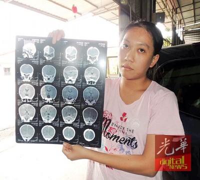杨爱晶出示小勇康脑部X光片。